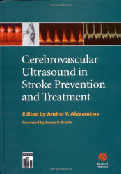 Cerebrovascular Ultrasound In Stroke Prevention And Treatment