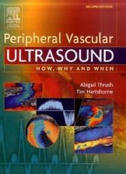 Peripheral Vascular Ultrasound