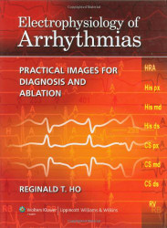 Electrophysiology Of Arrhythmias by Reginald Ho