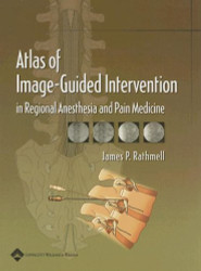 Atlas Of Image-Guided Intervention In Regional Anesthesia & Pain Medicine