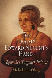 Head In Edward Nugent's Hand