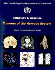 World Health Organization Classification of Tumours