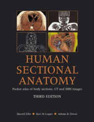 Human Sectional Anatomy: Pocket Atlas of Body Sections CT and MRI Images Third Edition