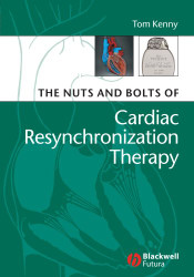 Nuts And Bolts Of Cardiac Resynchronization Therapy