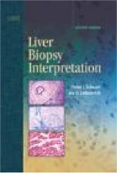 Liver Biopsy Interpretation
