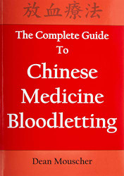 Complete Guide To Chinese Medicine Bloodletting
