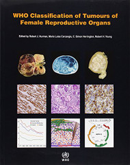 Who Classification Of Tumours Of The Female Reproductive Organs