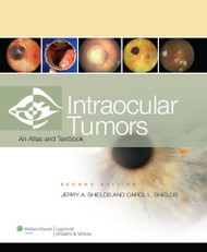 Intraocular Tumors