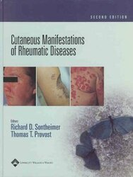 Cutaneous Manifestations of Rheumatic Diseases