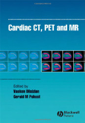Cardiac CT PET and MR