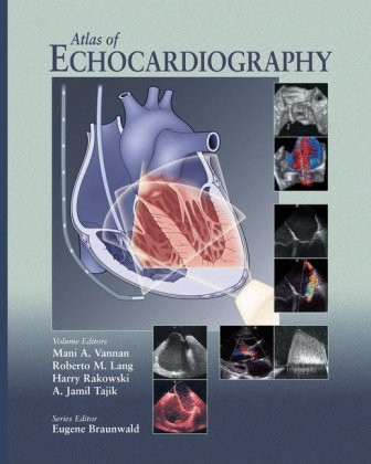Atlas of Echocardiography