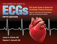 Complete Guide to ECGs
