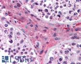 Anti-NR1H4 / FXR Antibody (aa194-243) IHC-plus LS-B987