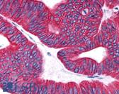 Anti-Prostaglandin D2 Receptor Antibody (Extracellular Domain) IHC-plus LS-A3279