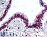 Anti-HMGN2 Antibody (C-Terminus) IHC-plus LS-B2000