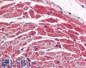 Anti-PIK3CA / PI3K Alpha Antibody (Internal) IHC-plus LS-B2451