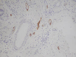 Rat anti Podoplanin 1:800 stained on human skin by Polink-2 Plus HRP Rat-NM DAB kit (Cat. No. D46-18)