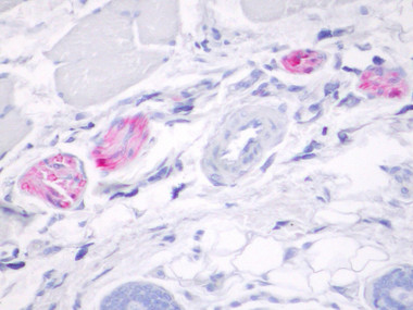 Mouse anti S-100 on RAT skin stained by Polink-2 Plus AP Mouse-NR Kit (Cat.No. D65-18)