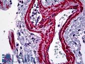 Anti-ACTA2 / Smooth Muscle Actin Antibody (N-Terminus) IHC-plus LS-B5211