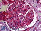 Anti-Nestin Antibody IHC-plus LS-B5224