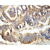 Calretinin IHC Antibody