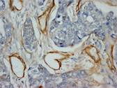 Collagen Type IV IHC Antibody