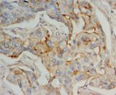 IFITM1 IHC Antibody