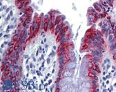 Anti-AGR2 Antibody (aa101-150) IHC-plus LS-B5736