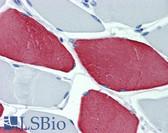 Anti-Myosin Antibody (clone MY-32) IHC-plus LS-B5961