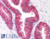 Anti-ABCC4 / MRP4 Antibody (C-Terminus) IHC-plus LS-B4