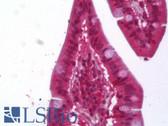 Anti-ACAT1 Antibody IHC-plus LS-B6372