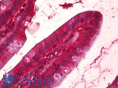 Anti-14-3-3 Antibody IHC-plus LS-B6644