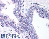 Anti-DNMT3A Antibody (aa10-118) IHC-plus LS-B280