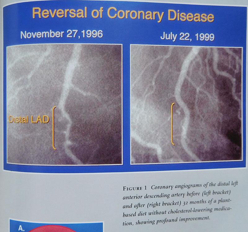 Heart Disease Nutritionally Cured