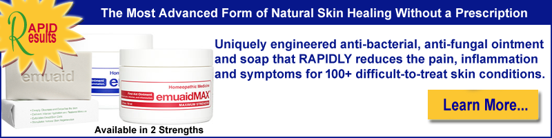 Emuaid Homeopathic Skin Ointment and Soap for over 100 Skin Disorders