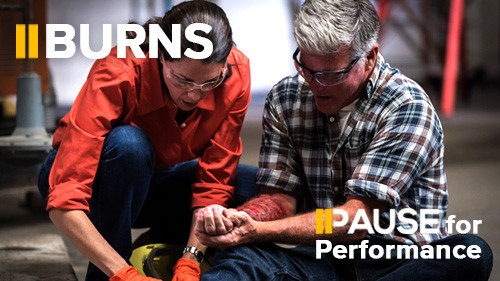 Pause for Performance: Burns