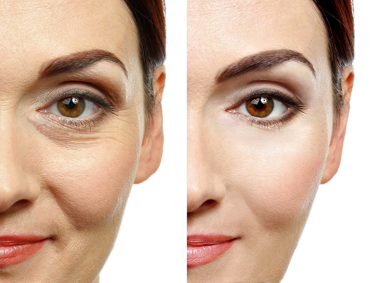 ViteLift Serum works instantly for visible results, tightening and lifting skin erasing years off your face for the day.