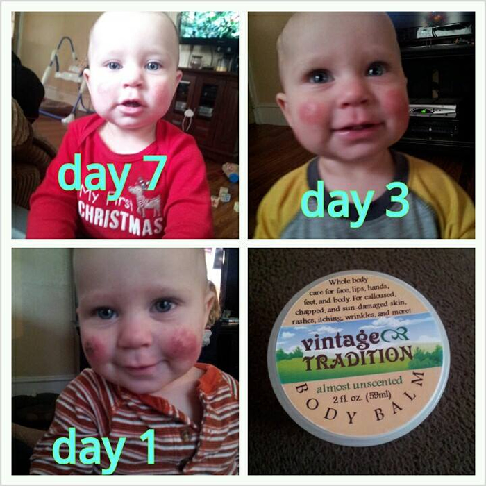 Eczema - Tallow Balm - A Mother's Picture Testimonial
