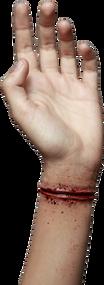Appliance - Wrist Cut Image