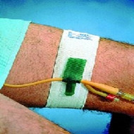 "Dale Foley Catheter Holder - A4335 - Bx10 - Waistband - 2"" x 56"" (Ref. # 330)"