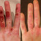 Before and after using rowing & sculling gloves. Calluses remain but ripping and tearing of skin is eliminated