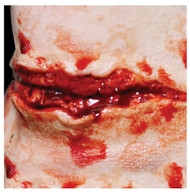 3D Slit Throat Prosthetic Transfer