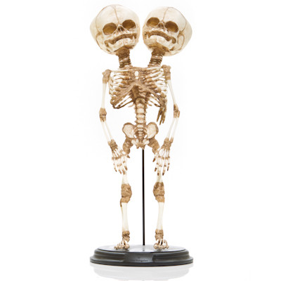 Conjoined Y-Baby Skeleton - Front