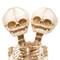 Conjoined Y-Baby Skeleton - Closeup