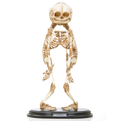 Conjoined A-Baby Skeleton - Front