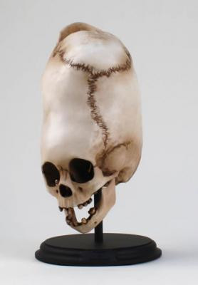 Boy of Bengal Skull - Front