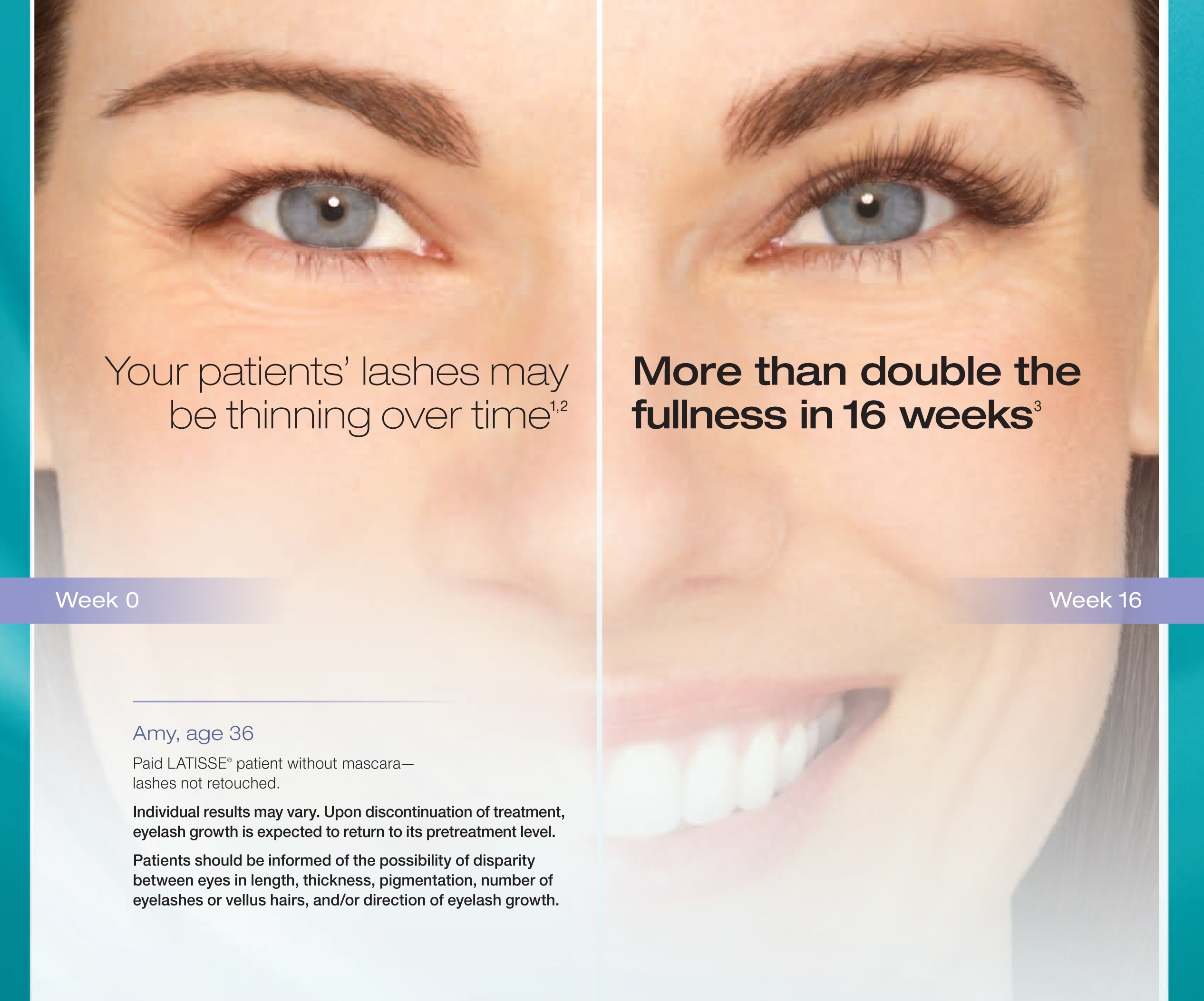 Latisse Best Price Latisse Rx By Md Latisse For Long Lashes