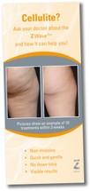 Zimmer Z Wave Pro Waiting Room Brochure – Cellulite - Pack of 50