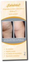 Zimmer Z Wave Pro Waiting Room Brochure – Cellulite - SPANISH - Pack of 50