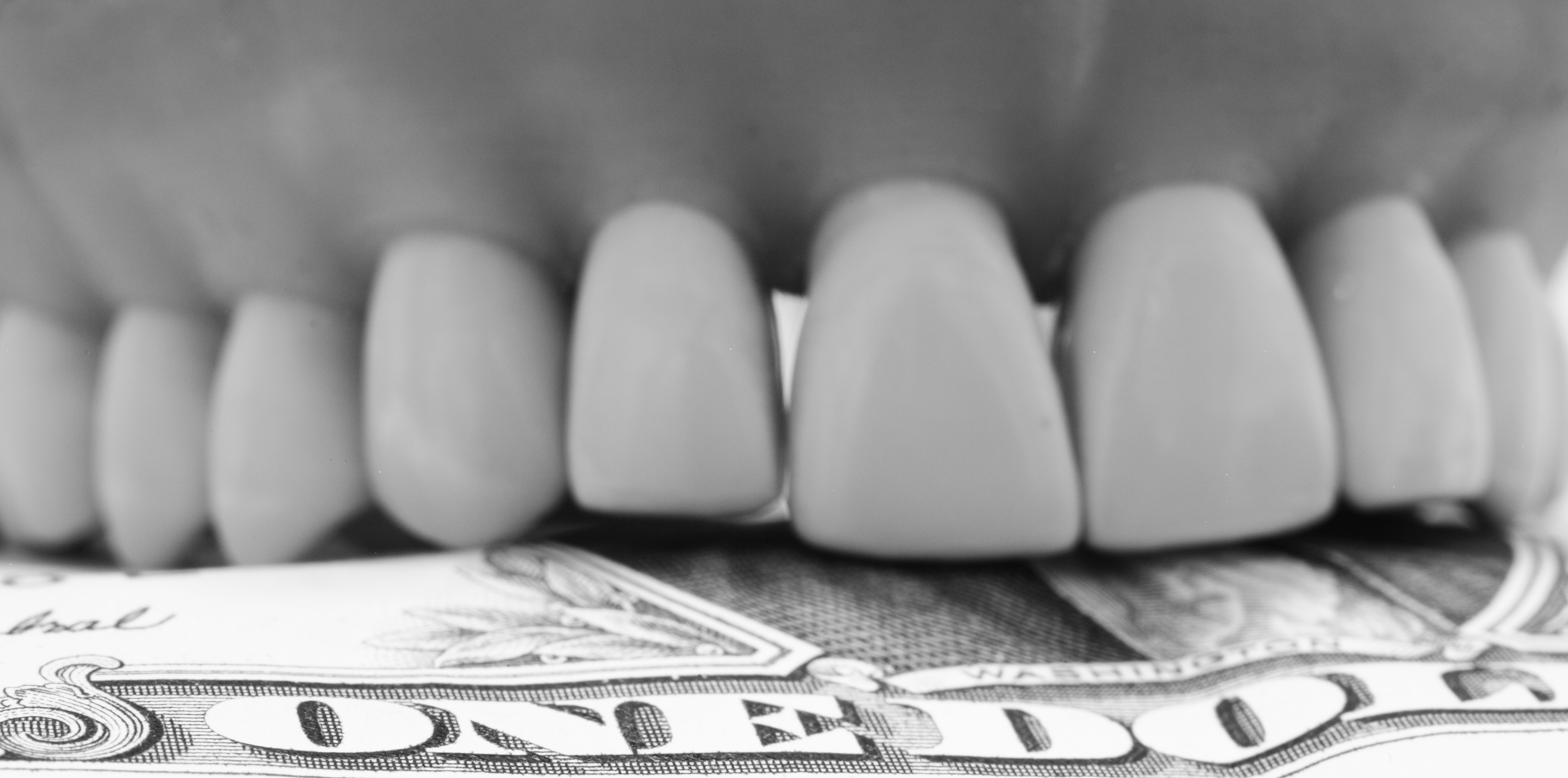 Bruxism dentist budget